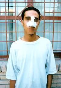 هزینه عمل بینی دکتر غفاری در ساری